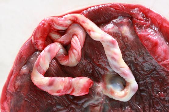 эндометриоз и риск развития инфаркта