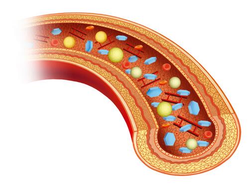 тромбы и опухоль мозга