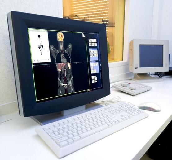 Позитронно-эмиссионная томография: ПЭТ в Израиле