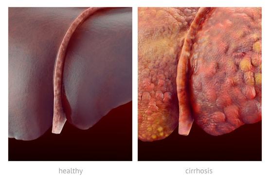Как предотвратить гепатит?